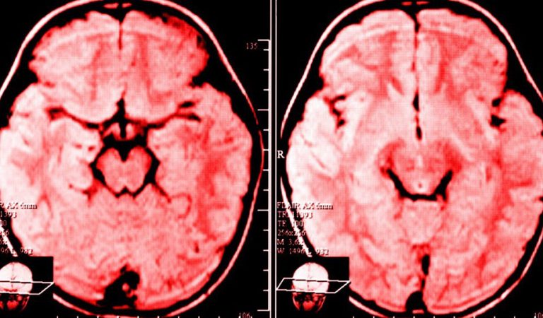 Τι συμβαίνει στον εγκέφαλο κάποιου που γκρινιάζει κάθε μέρα σύμφωνα με την επιστήμη